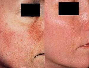 skin rejuvenation treatment re you studio Cincinnati ohio