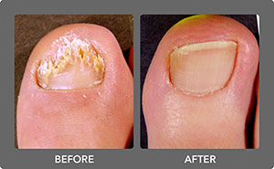 Toenail Fungus Before and After 4
