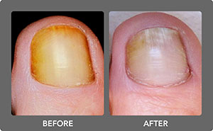 Toenail Fungus Before and After 3