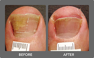 Toenail Fungus Before and After 2