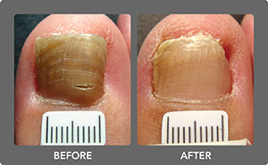 Toenail Fungus Before and After 1