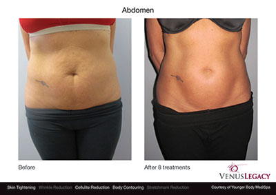 Before After Abdomen