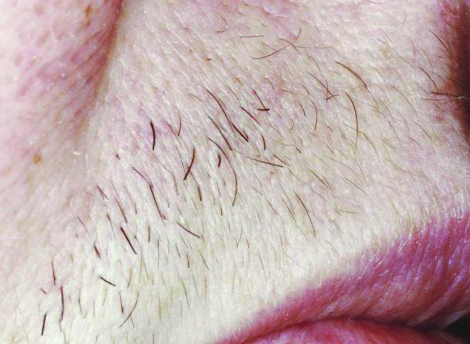 Laser Hair Removal Services Women And Men Cincinnati East